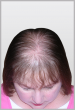 Women\'s Hair Restoration Before