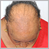 thinning hair treatment cincinnati metro area