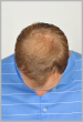Men's Hair Restoration Before