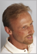 Men's Hair Restoration After