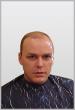 Men's Hair Restoration Before