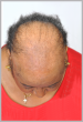Women's Hair Restoration Before