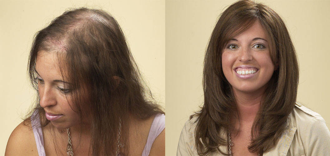 Cincinnati hair loss men women hair loss solutions allusions recent client before and after images pmusecretfo Gallery