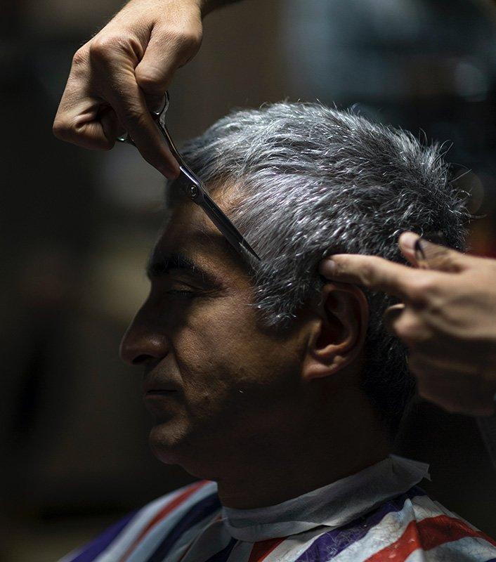Men's Hair Transplants in 2020