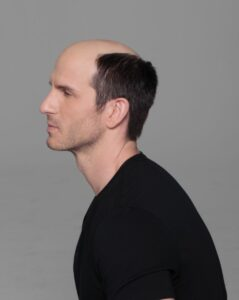 Men's Hair Loss Myths & Facts