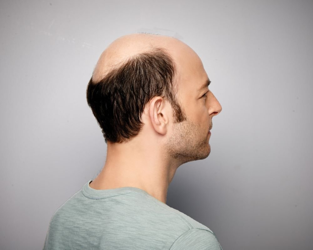 Hair Replacement Options for Men